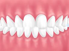 歯並びイラスト